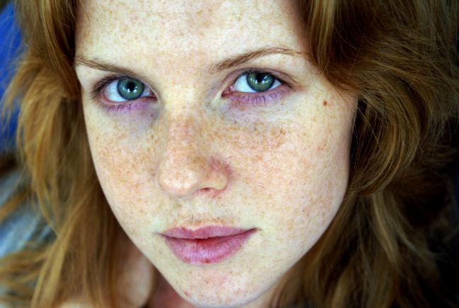 freckle